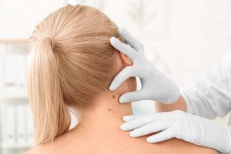 Skin Cancer Symptoms; Warning Signs of Skin Cancer & Types & Causes