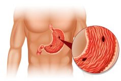 Stomach Ulcer (Gastric Ulcer); 12 Common Signs & Symptoms